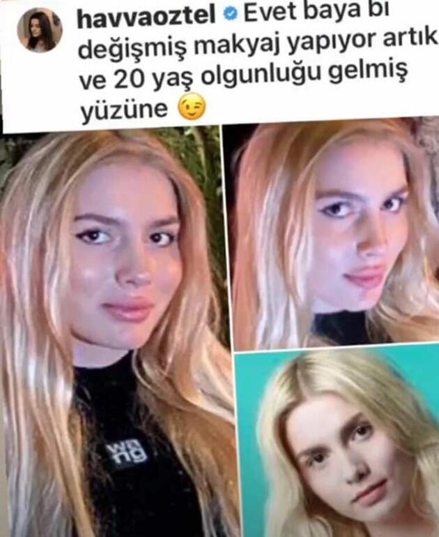 Aleyna Tilki'nin yüzünde estetik var mı?